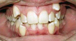 Çarpışık Dişler
