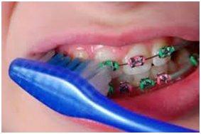 Ortodonti Hastaları Bakım